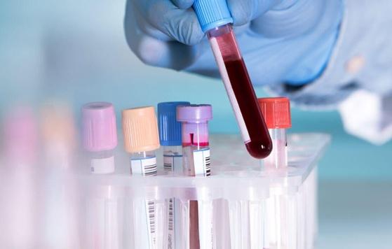 За добу на Харківщині зафіксували 839 нових випадків коронавірусу